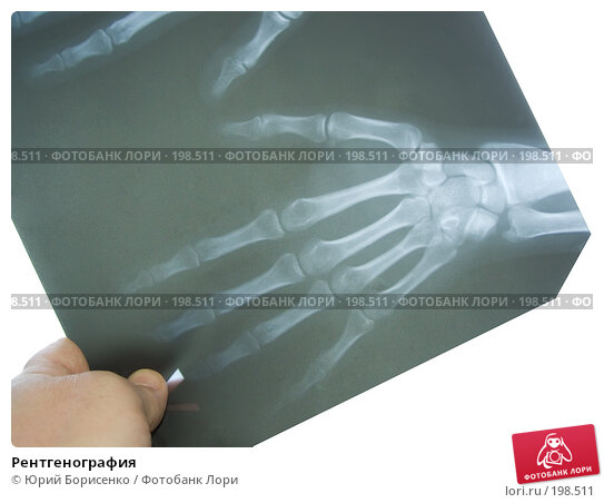 Рентгенография; фотограф Юрий Борисенко; дата съёмки 9 февраля 2008 г...