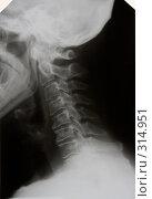 Купить «Остеохондроз III ст. шейного отдела позвоночника.», фото № 314951, снято 8 июня 2008 г. (c) Doc... / Фотобанк Лори