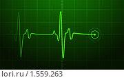 Купить «Электрокардиограмма», иллюстрация № 1559263 (c) Антон Соколов / Фотобанк Лори