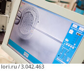 Купить «Процесс искусственного оплодотворения на мониторе», фото № 3042463, снято 12 декабря 2005 г. (c) Monkey Business Images / Фотобанк Лори