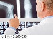 Купить «Врач рассматривает рентгеновские снимки», фото № 3260635, снято 11 октября 2011 г. (c) CandyBox Images / Фотобанк Лори