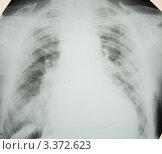 Купить «Правосторонняя очаговая пневмония», эксклюзивное фото № 3372623, снято 14 апреля 2008 г. (c) Doc... / Фотобанк Лори