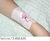 Купить «Катетер - медицинский инструмент», фото № 3458635, снято 21 апреля 2012 г. (c) Павел Кричевцов / Фотобанк Лори