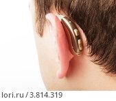 Купить «Слуховой аппарат за ухом», фото № 3814319, снято 15 октября 2011 г. (c) Оксана Ковач / Фотобанк Лори