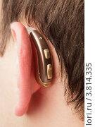 Купить «Слуховой аппарат за ухом», фото № 3814335, снято 15 октября 2011 г. (c) Оксана Ковач / Фотобанк Лори