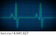Сердцебиение на мониторе. Стоковая анимация, видеограф Александр Дейнега / Фотобанк Лори