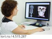 Купить «Женщина стоматолог рассматривает на экране компьютера рентгеновский снимок черепа», фото № 4515287, снято 16 июля 2011 г. (c) Losevsky Pavel / Фотобанк Лори