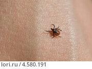 Клещ на коже человека (Ixodes scapularis) Стоковое фото, фотограф Ружьин Алексей / Фотобанк Лори