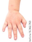 Купить «Опухшая рука ребенка от укусов комаров», фото № 6362763, снято 22 января 2020 г. (c) Насыров Руслан / Фотобанк Лори