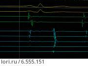 Купить «Heart cardiodiagram tracing», фото № 6555151, снято 5 февраля 2014 г. (c) Дмитрий Калиновский / Фотобанк Лори