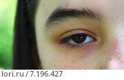 Глаз девочки крупным планом. Стоковое видео, видеограф Sanda Stanca / Фотобанк Лори