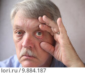 Купить «bloodshot eyes in a senior man», фото № 9884187, снято 24 мая 2018 г. (c) PantherMedia / Фотобанк Лори