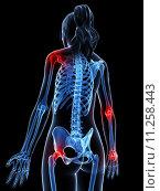 Купить «3d rendered illustration of painful joints», фото № 11258443, снято 26 мая 2019 г. (c) PantherMedia / Фотобанк Лори
