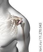 Купить «3d rendered illustration of a shoulder replacement», фото № 11270043, снято 26 мая 2019 г. (c) PantherMedia / Фотобанк Лори