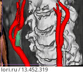 Купить «3D computed tomographic CT scan reconstruction of an atheromatous stenosis of the right internal carotid artery. The atheroma plaque causing the stenosis is seen in green.», фото № 13452319, снято 22 мая 2018 г. (c) age Fotostock / Фотобанк Лори