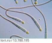 Купить «Gloeotrichia (Gloeotrichia spec.), Cyanobacteria, Germany», фото № 13780195, снято 2 сентября 2019 г. (c) age Fotostock / Фотобанк Лори