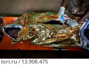 Купить «HIV aids patient wrapped in alluminium foil to keep warm in hospital in CAR.», фото № 13908475, снято 26 февраля 2020 г. (c) age Fotostock / Фотобанк Лори