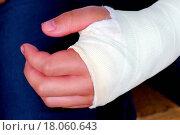 Купить «Broken hand with plaster cast close up», фото № 18060643, снято 20 января 2020 г. (c) easy Fotostock / Фотобанк Лори