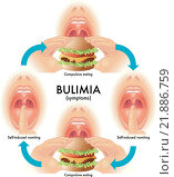 Купить «medical illustration of the symptoms of bulimia», иллюстрация № 21886759 (c) PantherMedia / Фотобанк Лори