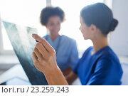 Купить «close up of doctors with x-ray image at hospital», фото № 23259243, снято 14 марта 2015 г. (c) Syda Productions / Фотобанк Лори
