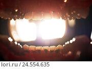 Купить «Dentist, mouth, openly, cogs, lamp, perspective, oral cavity,», фото № 24554635, снято 29 сентября 2009 г. (c) mauritius images / Фотобанк Лори