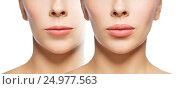 Купить «woman before and after lip fillers», фото № 24977563, снято 14 апреля 2016 г. (c) Syda Productions / Фотобанк Лори