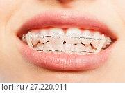 Купить «Teeth with dental braces and elastics full mouth», фото № 27220911, снято 3 июня 2017 г. (c) Сергей Новиков / Фотобанк Лори
