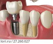 Купить «Anatomy of healthy teeth and tooth dental implant in human denturra.», фото № 27260027, снято 24 мая 2018 г. (c) Maksym Yemelyanov / Фотобанк Лори