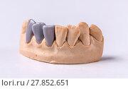 Купить «Wax dental prosthesis», фото № 27852651, снято 22 апреля 2018 г. (c) PantherMedia / Фотобанк Лори