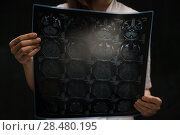Купить «Doctor viewing mri x-ray of brain», фото № 28480195, снято 16 мая 2014 г. (c) Ingram Publishing / Фотобанк Лори