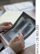 Купить «Hands of doctor holding chest and lungs xray in medical office», фото № 28483283, снято 5 июня 2015 г. (c) Ingram Publishing / Фотобанк Лори