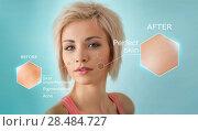 Купить «Bright closeup portrait of beautiful woman with skin crops. Skincare concept», фото № 28484727, снято 18 января 2014 г. (c) Ingram Publishing / Фотобанк Лори