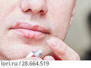 Купить «herpes simplex virus infection. Lips treatment by cream. Male face.», фото № 28664519, снято 22 марта 2018 г. (c) Дмитрий Калиновский / Фотобанк Лори