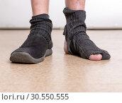 Male feet with sock in hole. Стоковое фото, фотограф Tryapitsyn Sergiy / Фотобанк Лори