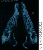 Купить «Рентгеновский снимок женских стоп», эксклюзивное фото № 30900323, снято 5 сентября 2018 г. (c) Ирина Климкович / Фотобанк Лори