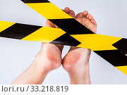 Купить «Groomed dry skin on feet and heels, cracked corn», фото № 33218819, снято 13 июля 2020 г. (c) easy Fotostock / Фотобанк Лори