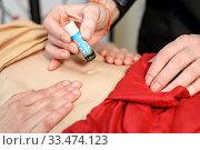 Купить «Alternative therapist applying moxibustion a traditional chinese medicine method.», фото № 33474123, снято 13 марта 2020 г. (c) easy Fotostock / Фотобанк Лори