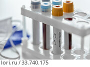 beakers with coronavirus blood test in holder. Стоковое фото, фотограф Syda Productions / Фотобанк Лори