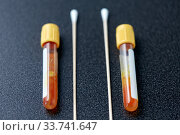 test tubes with blood plasma and cotton swabs. Стоковое фото, фотограф Syda Productions / Фотобанк Лори