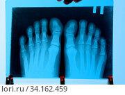 Купить «X-ray of toes. Foot on X-ray. bone research», фото № 34162459, снято 12 июля 2020 г. (c) easy Fotostock / Фотобанк Лори
