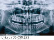 Panoramic shot of the jaw. Panoramic black and white image dental x-ray of adult without single dental implant. Roentgen teeth upper and lower jaw. Negative shot. Стоковое фото, фотограф Nataliia Zhekova / Фотобанк Лори
