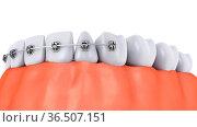 A teeth with braces and dental implants, 3d render. Стоковое фото, фотограф Zoonar.com/Roman Ivashchenko / easy Fotostock / Фотобанк Лори