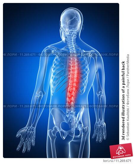 Дорзальная грыжа межпозвоночного диска диагностика и лечение