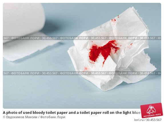 A photo of used bloody toilet paper and a toilet paper roll on the light blue background. Стоковое фото, фотограф Евдокимов Максим / Фотобанк Лори
