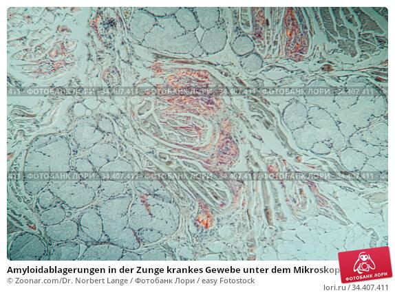 Amyloidablagerungen in der Zunge krankes Gewebe unter dem Mikroskop... Стоковое фото, фотограф Zoonar.com/Dr. Norbert Lange / easy Fotostock / Фотобанк Лори