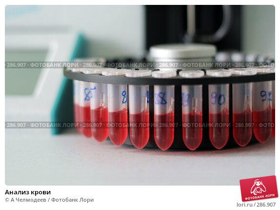 Анализ крови, фото № 286907, снято 24 января 2008 г. (c) A Челмодеев / Фотобанк Лори