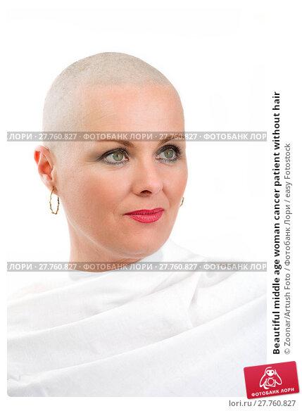 Купить «Beautiful middle age woman cancer patient without hair», фото № 27760827, снято 25 января 2020 г. (c) easy Fotostock / Фотобанк Лори