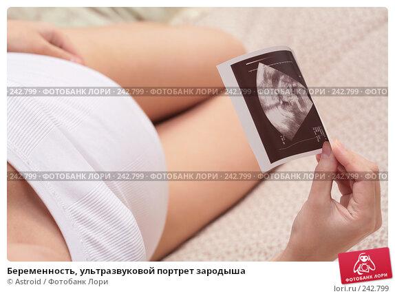 Беременность, ультразвуковой портрет зародыша, фото № 242799, снято 14 марта 2008 г. (c) Astroid / Фотобанк Лори