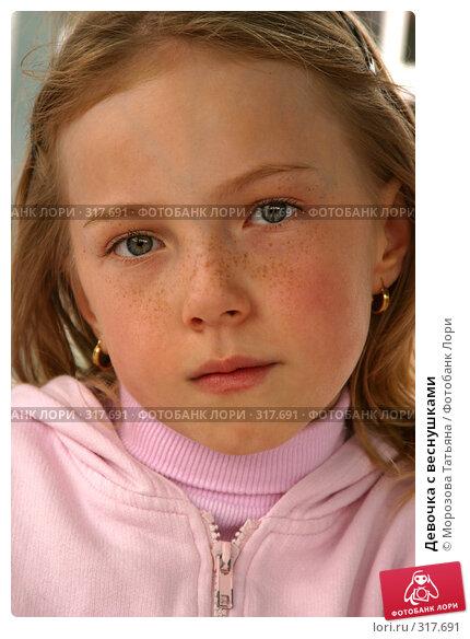 Девочка с веснушками, фото № 317691, снято 16 апреля 2005 г. (c) Морозова Татьяна / Фотобанк Лори