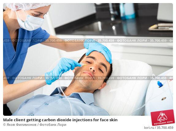 Male client getting carbon dioxide injections for face skin. Стоковое фото, фотограф Яков Филимонов / Фотобанк Лори
